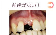 前歯がない インプラント