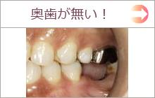 奥歯が無い インプラント