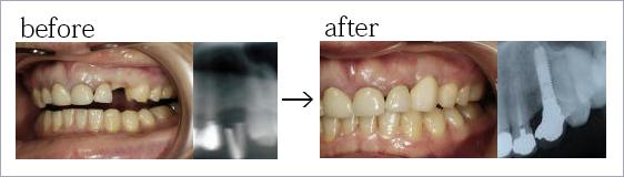 インプラント 前歯