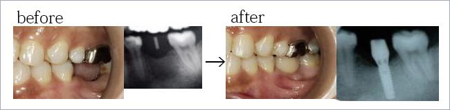 インプラント 奥歯