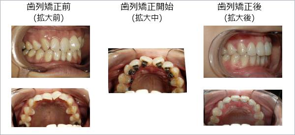 歯の温存 抜かない矯正