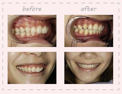 矯正治療出っ歯