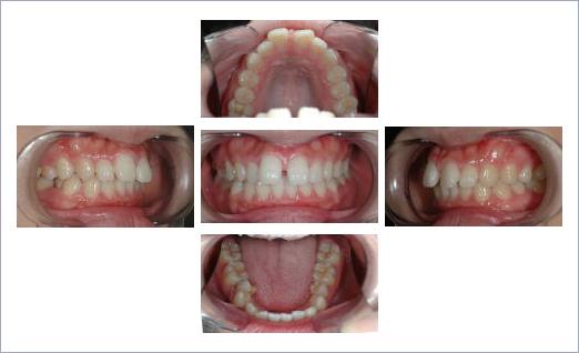すきっ歯 矯正
