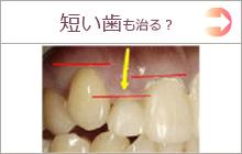短い歯を揃えたい