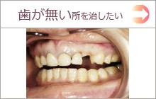 歯がないところを治したい