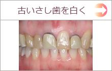 古い差し歯を白く