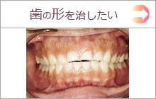 歯の形を変えたい