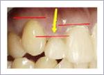 短い歯を長くする歯周形成外科の前