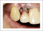 短い歯を長くする歯周形成外科の処置中