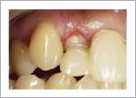 短い歯を揃えた歯周形成外科後 歯ぐきが落ち着いた状態