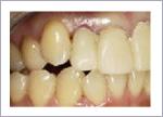 短い歯を揃えた歯周形成外科後 仮歯の状態