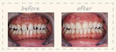 前歯の形を変える