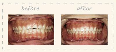 前歯の長さを変える