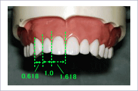 審美歯科 前歯 見え方