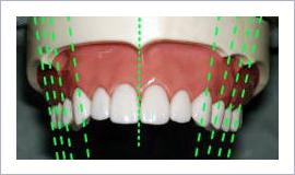 審美歯科 歯 見え方