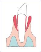 歯周病 歯周ポケット