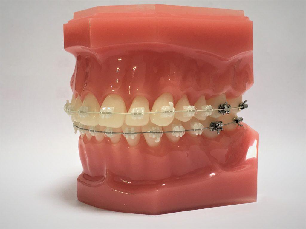 上下とも歯の表側に白いブラケットを付け、上の歯は白いホワイトワイヤー&下の歯は通常の銀色のワイヤーを装着したハーフホワイト矯正