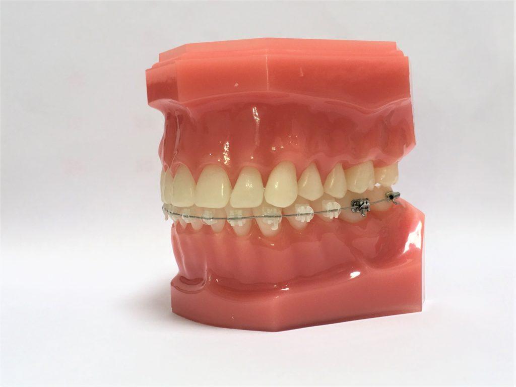 見えない裏側矯正のブラケットを上の歯に付けたハーフリンガル矯正
