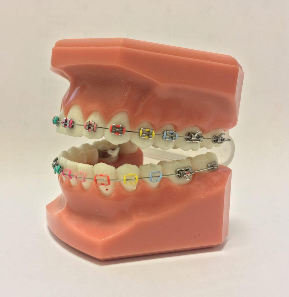 上下とも歯の表側に白いブラケット&銀色のワイヤーを通したスタンダード矯正