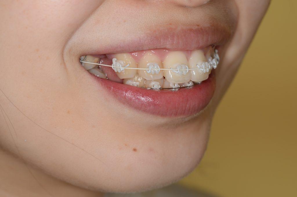 上の歯にホワイトワイヤーを用いたハーフホワイト矯正