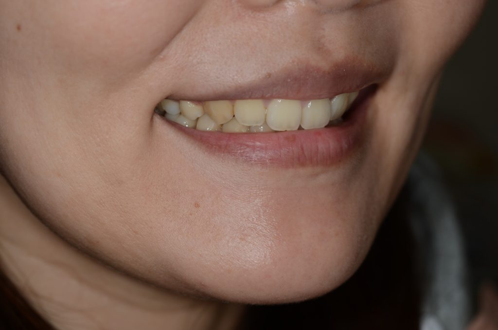 ガミースマイルを治療して、笑っても歯ぐきが見えなくなった笑顔
