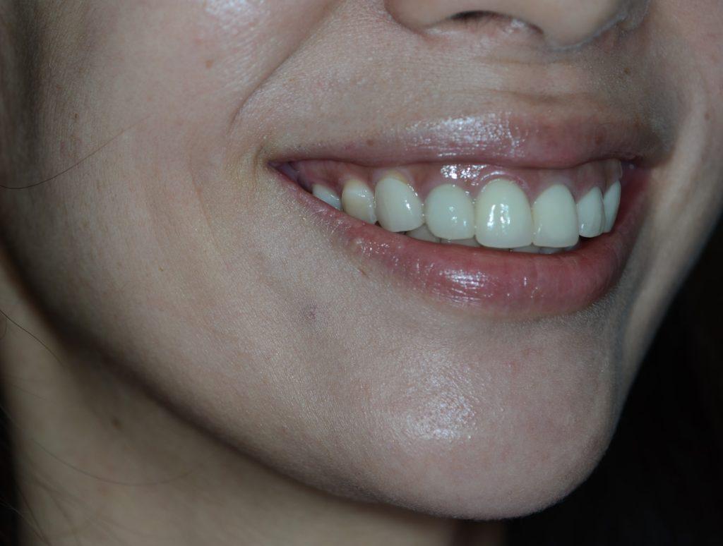 笑うと歯ぐきが見えるガミースマイルの矯正前