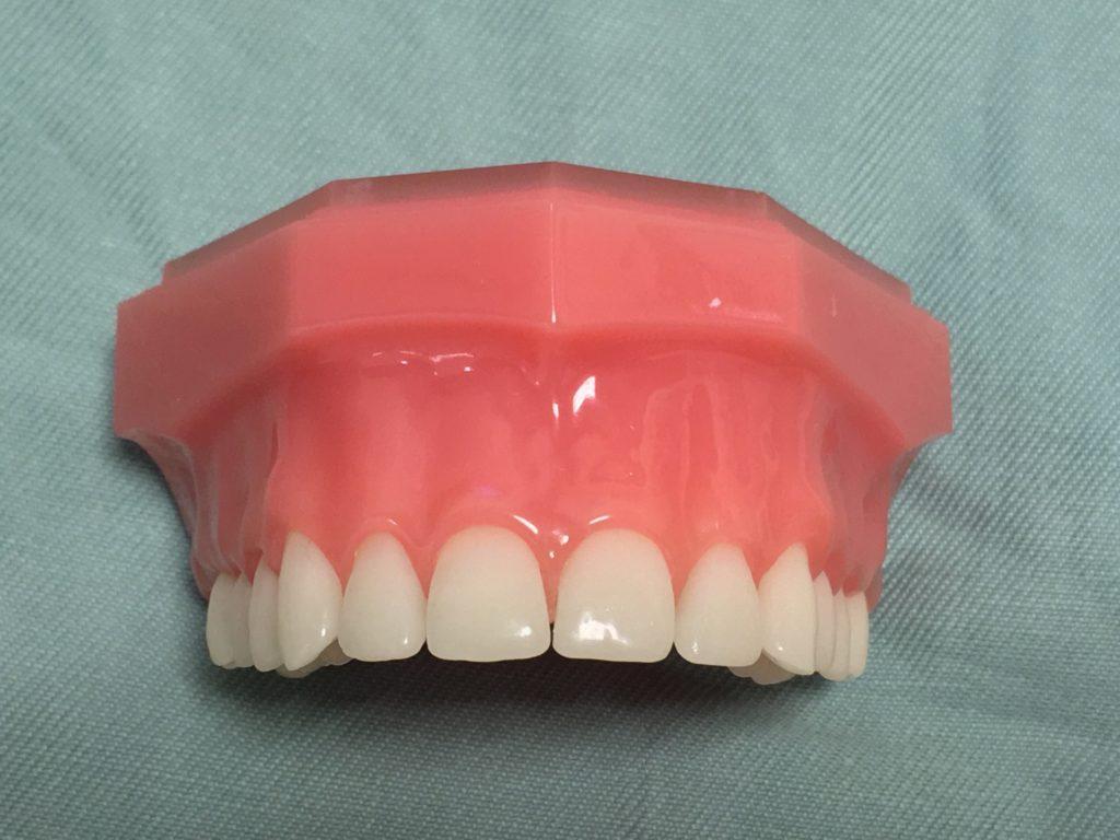 前歯が左右対称であることが審美歯科では大事なポイント