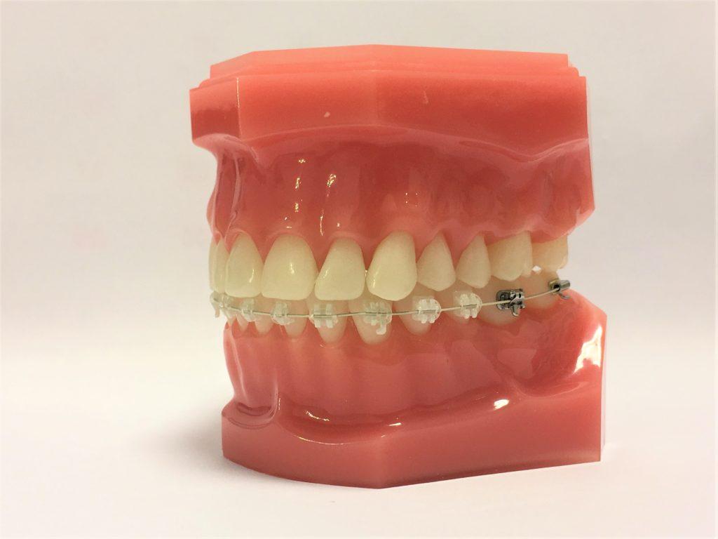見えない裏側矯正のブラケットを上の歯に付けたリンガル矯正で、下の歯は白いブラケット&銀色のワイヤーを装着したハーフリンガルホワイト矯正