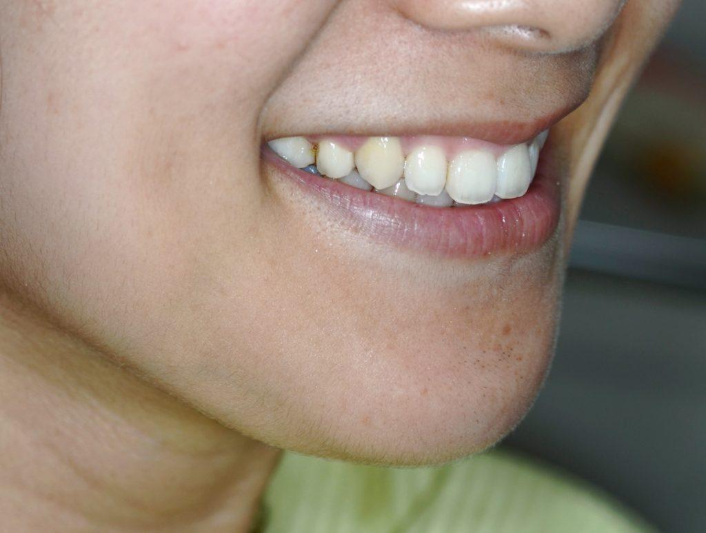 笑っても歯ぐきが見えなくなったガミースマイルの矯正後