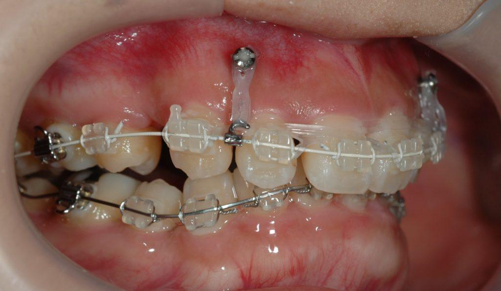矯正インプラントから歯を押し込む力を加えて、歯ぐきも一緒に変化させて、ガミースマイルを治します