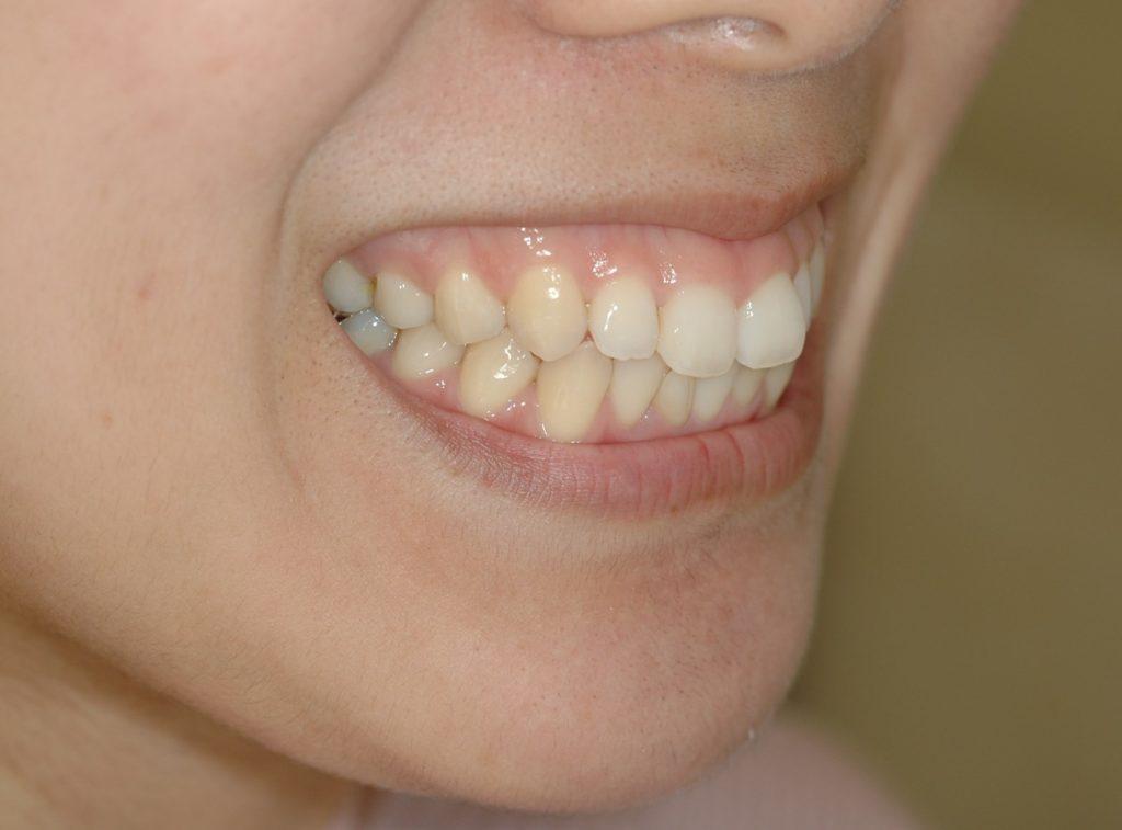 笑うと歯ぐきが広く見えるガミースマイルの矯正