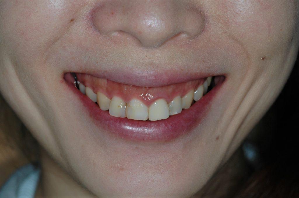 笑うと歯ぐきが大きく見えるガミースマイルの矯正前