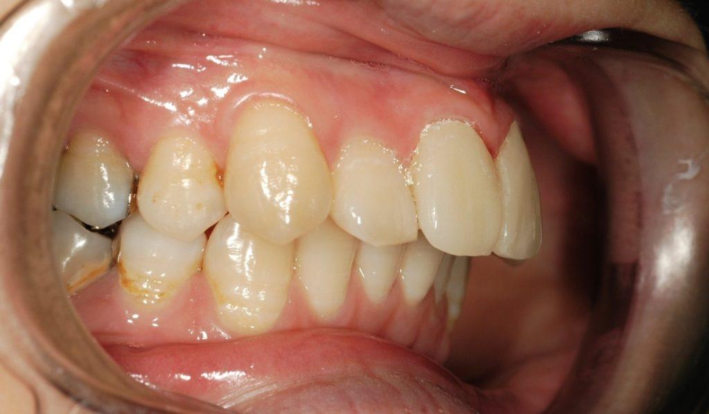 セラミック矯正で仮歯になった前歯