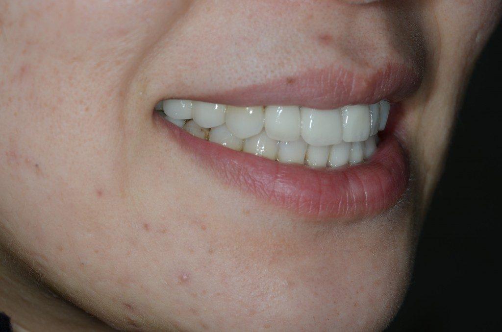 セラミックで綺麗にした前歯でスマイル