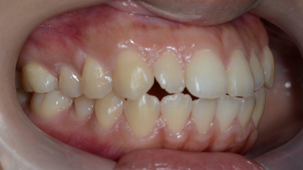 ガミースマイルの矯正前の歯並び