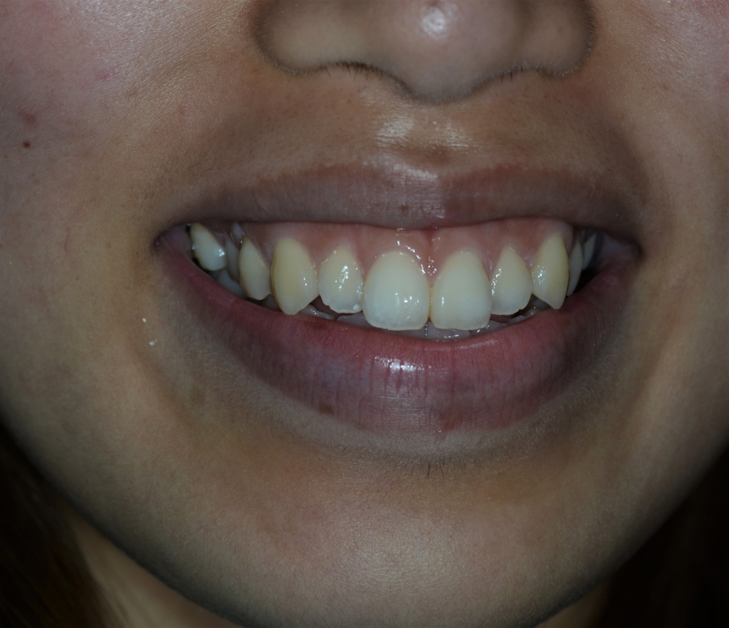 矯正前の笑うと歯ぐきが目立つガミースマイル