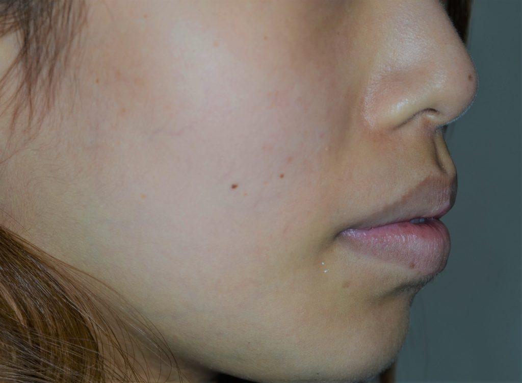 ガミースマイル矯正前の口元が出ている横顔(斜め)