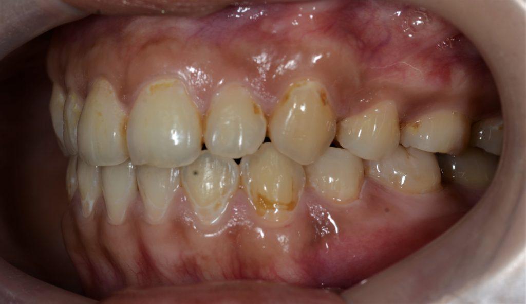 ガミースマイル矯正後の歯並び