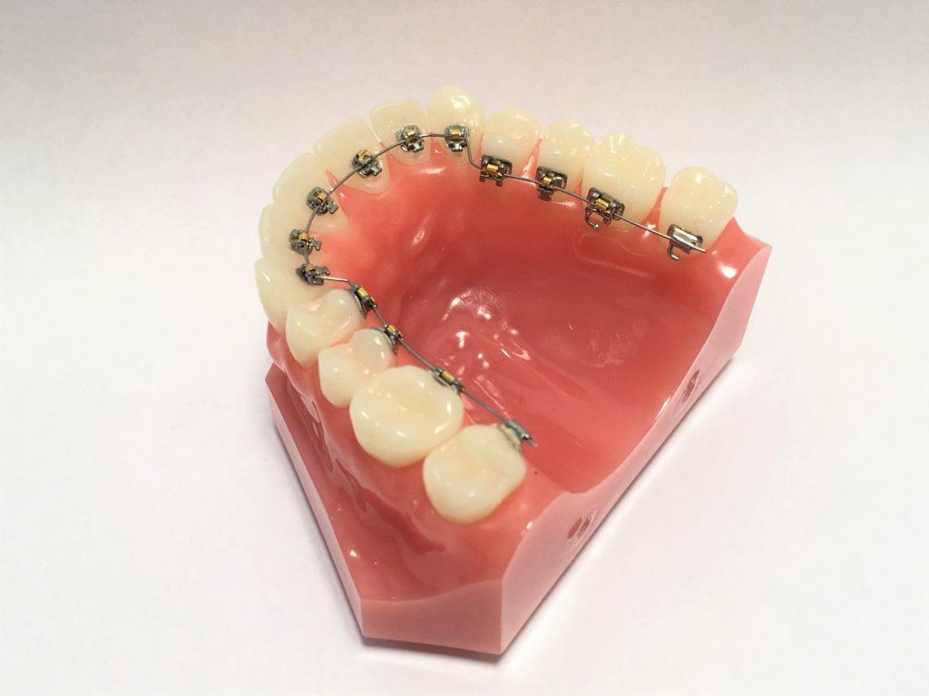 上の歯の裏側にリンガルブラケット