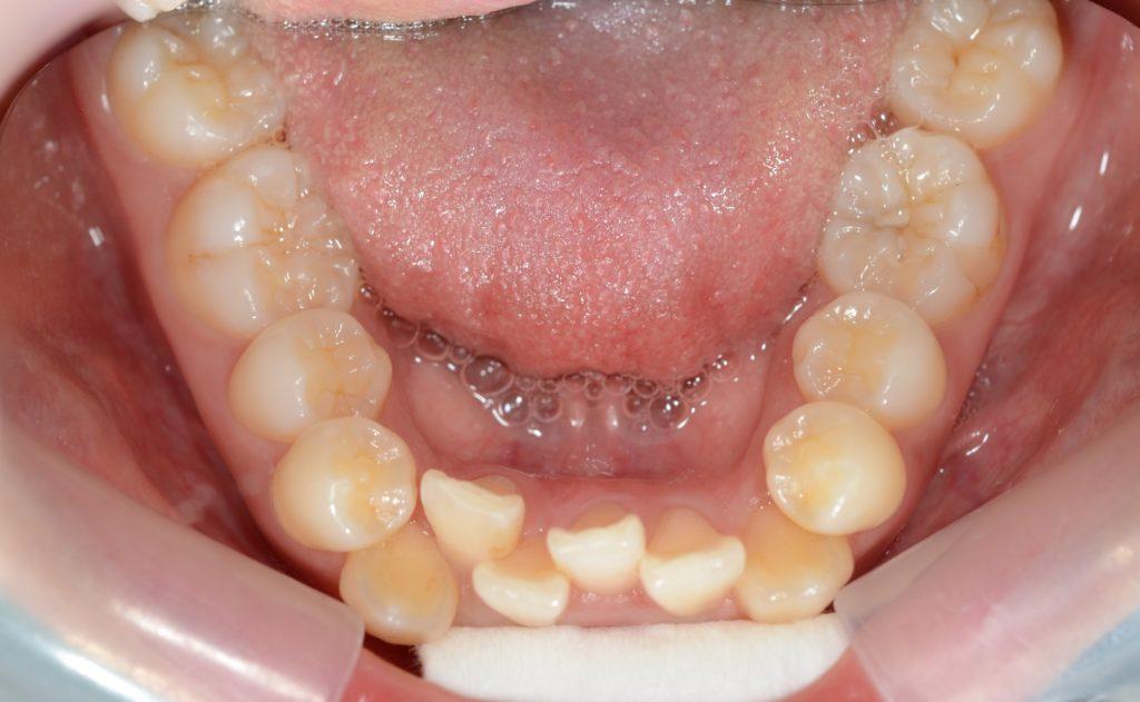叢生の治療前の歯並び
