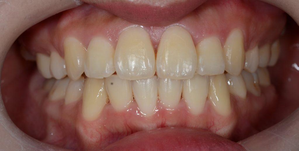 叢生の治療後の歯並び