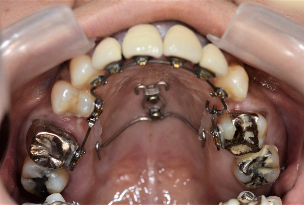 矯正インプラント 治療への使用例