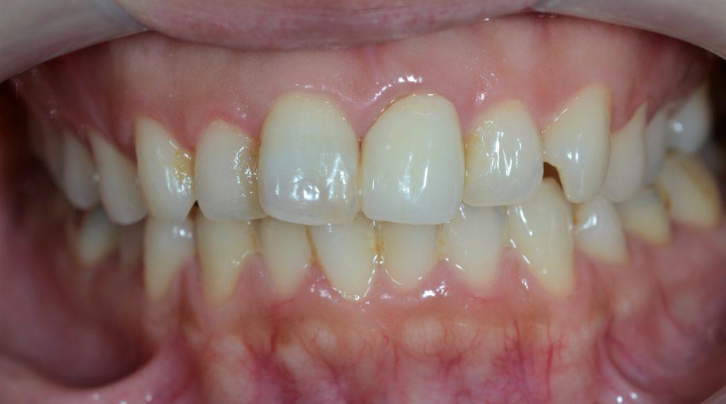 審美歯科の治療前の歯