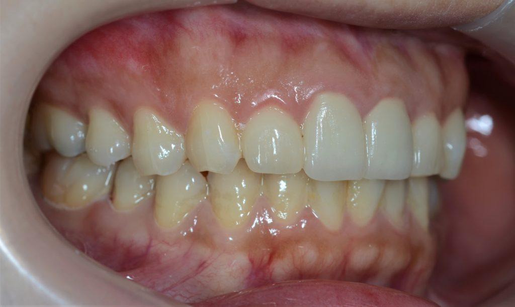 審美歯科の治療後の歯