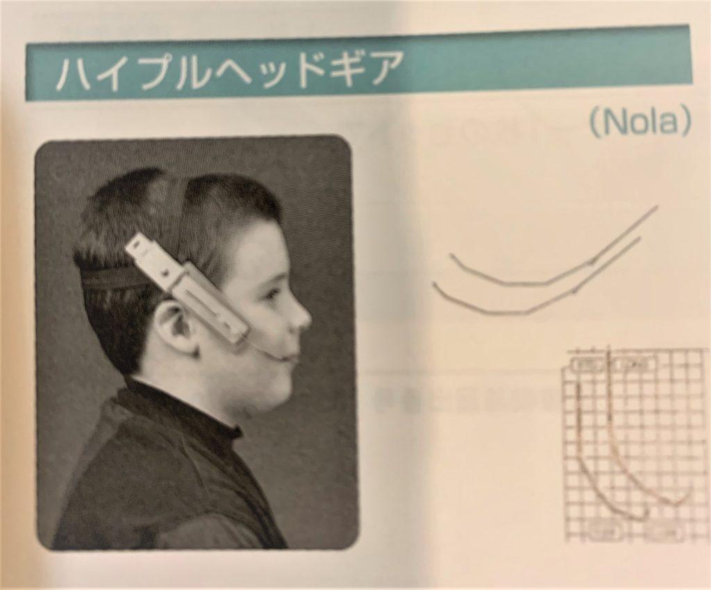 矯正で用いる顎外整形力 ヘッドギア