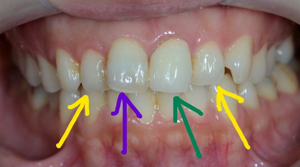 審美歯科の治療前に問題点を整理