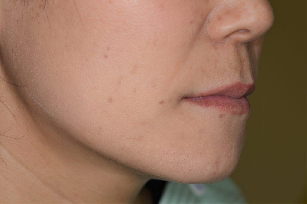 前歯のガタガタを矯正した後の横顔・口元