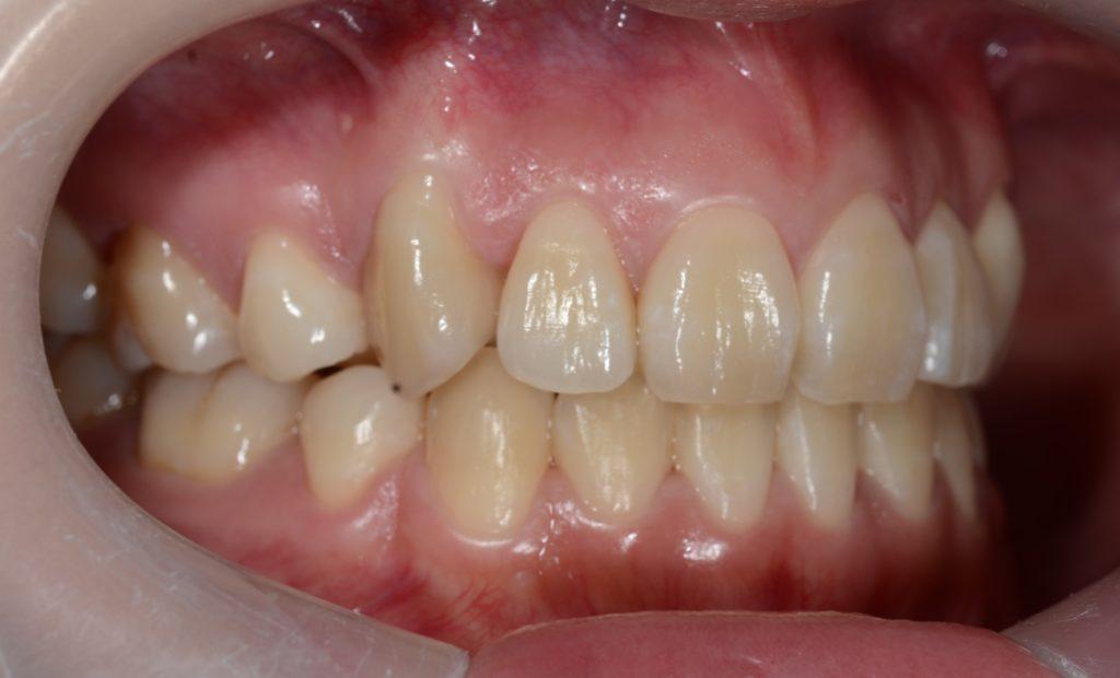 八重歯の矯正後の歯並び