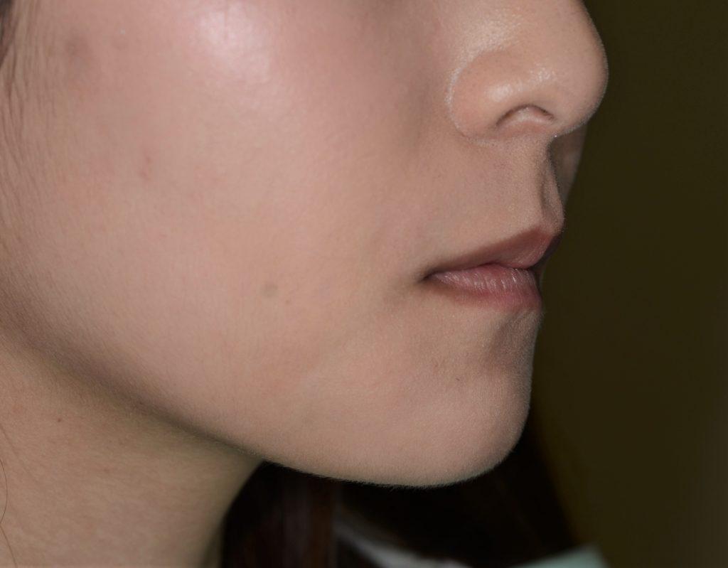 八重歯の矯正後の横顔・口元