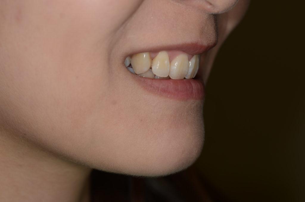 八重歯の矯正後の笑顔